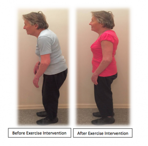 exercise-intervention-before-after